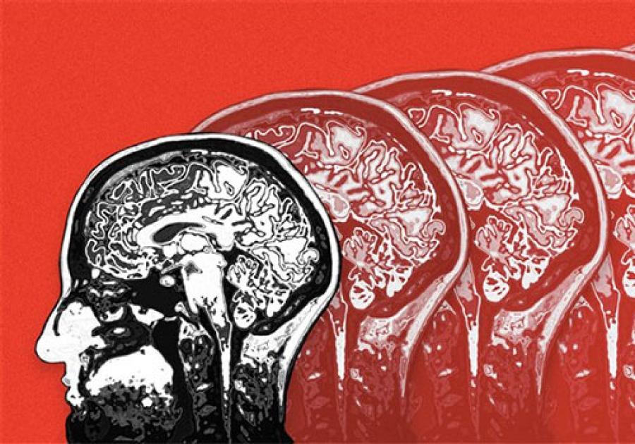ΙΟΥΝΙΟΣ: Ο μήνας ευαισθητοποίησης για τη νόσο του Alzheimer